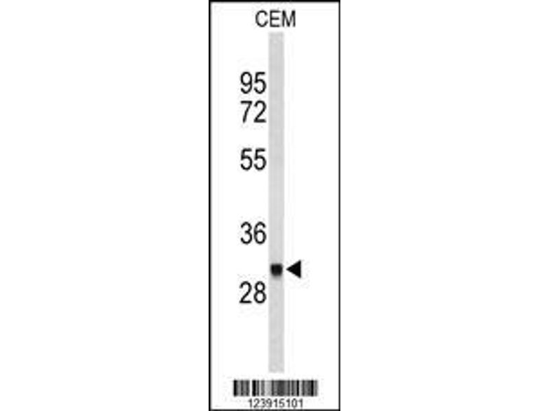 Western Blotting (WB) image for anti-Fc Fragment of IgG, High Affinity Ib, Receptor (CD64) (FCGR1B) (AA 248-276), (C-Term) antibody (ABIN653144)