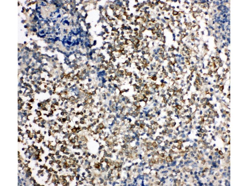 Immunohistochemistry (IHC) image for anti-Hepatitis A Virus Cellular Receptor 1 (HAVCR1) (AA 332-348), (C-Term) antibody (ABIN3044226)
