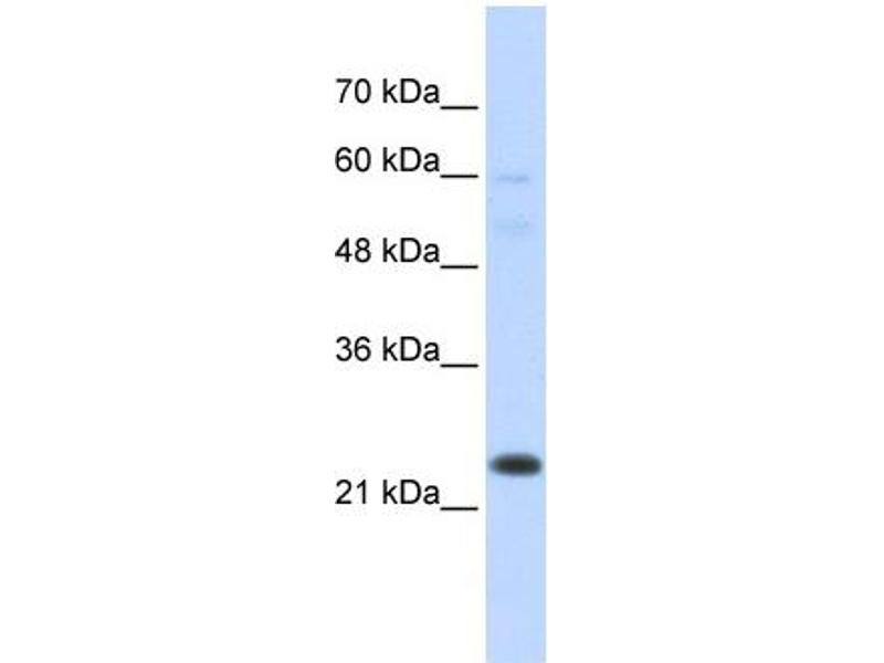 Western Blotting (WB) image for anti-TAF12 RNA Polymerase II, TATA Box Binding Protein (TBP)-Associated Factor, 20kDa (TAF12) (N-Term) antibody (ABIN2792680)