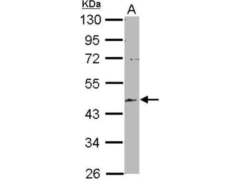 Western Blotting (WB) image for anti-Echinoderm Microtubule Associated Protein Like 2 (EML2) (Center) antibody (ABIN4307855)