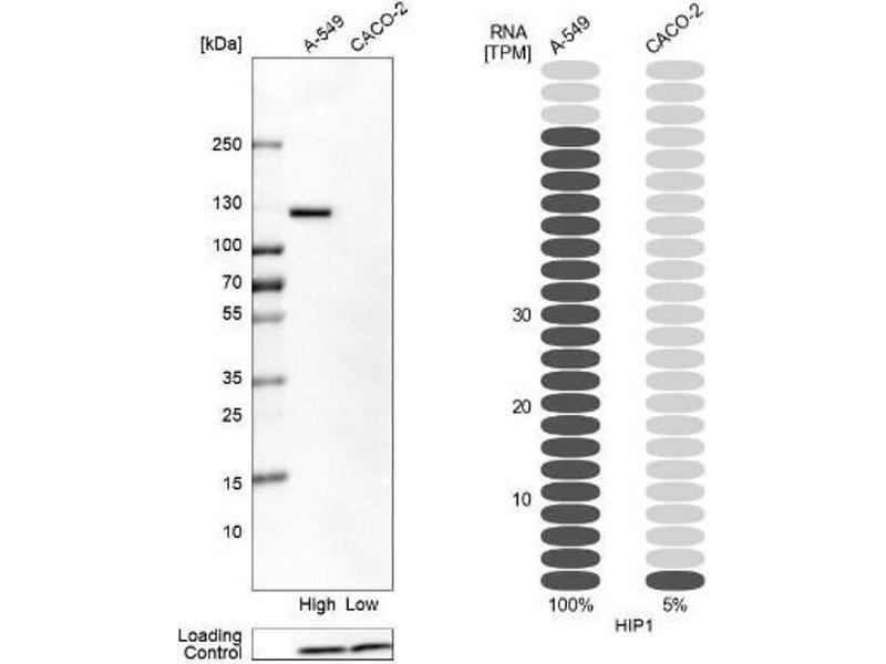 Western Blotting (WB) image for anti-Huntingtin Interacting Protein 1 (HIP1) antibody (ABIN4317501)