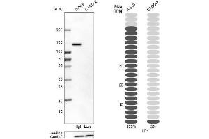Western Blotting (WB) image for anti-Huntingtin Interacting Protein 1 (HIP1) antibody (ABIN4317501)