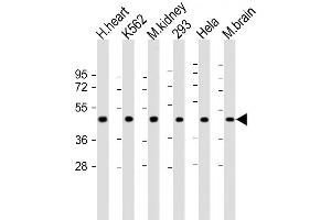 Image no. 3 for anti-Growth Differentiation Factor 11 (GDF11) (AA 32-61), (N-Term) antibody (ABIN388814)
