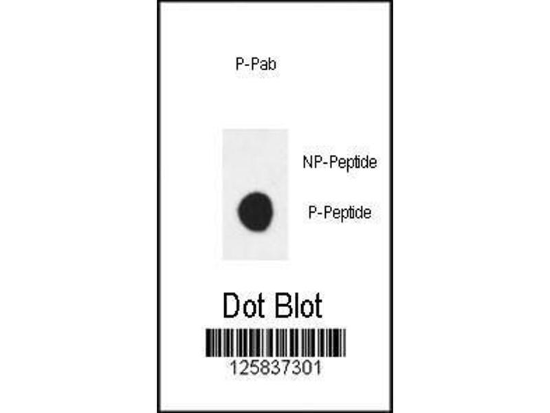 Dot Blot (DB) image for anti-V-Erb-B2 Erythroblastic Leukemia Viral Oncogene Homolog 3 (Avian) (ERBB3) (pTyr1289) antibody (ABIN1881314)