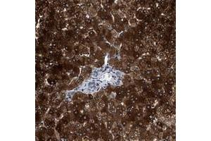 Image no. 1 for anti-Zinc Finger Protein 462 (ZNF462) antibody (ABIN5591368)