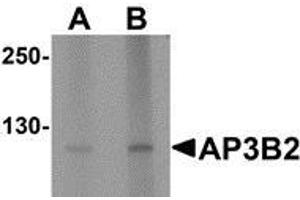 Image no. 2 for anti-Adaptor-Related Protein Complex 3, beta 2 Subunit (AP3B2) (N-Term) antibody (ABIN783508)
