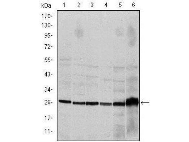 Western Blotting (WB) image for anti-Caspase 8, Apoptosis-Related Cysteine Peptidase (CASP8) antibody (ABIN4288173)