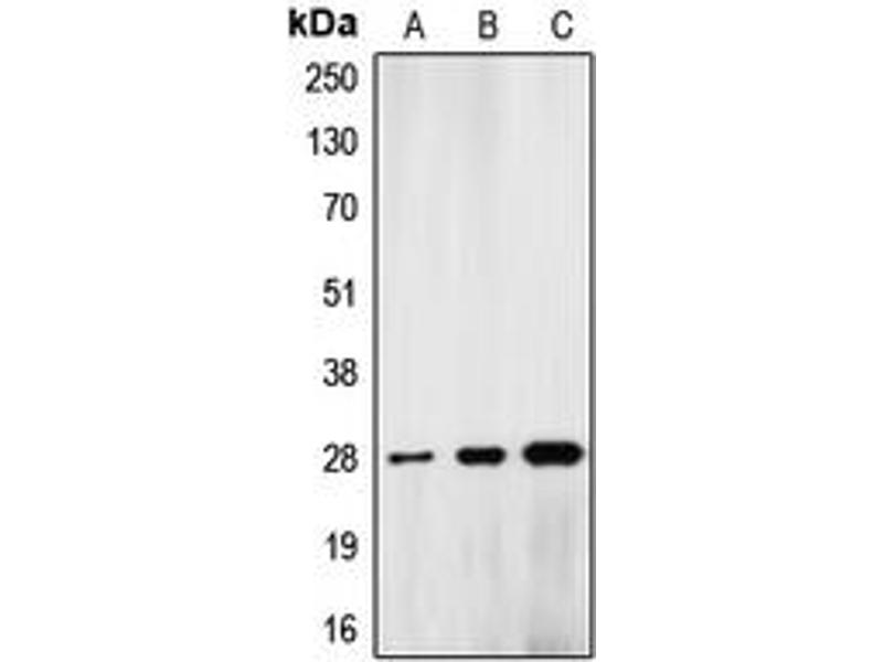 Western Blotting (WB) image for anti-Lamin A/C (LMNA) (Center) antibody (ABIN2706458)