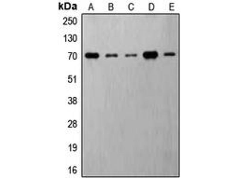 Western Blotting (WB) image for anti-Ribosomal Protein S6 Kinase, 70kDa, Polypeptide 1 (RPS6KB1) (C-Term), (pSer421) antibody (ABIN2705214)