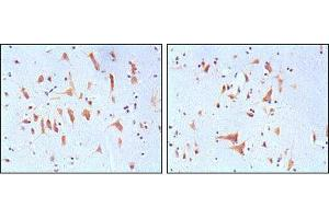 Image no. 1 for anti-Fragile X Mental Retardation 1 (FMR1) antibody (ABIN969148)