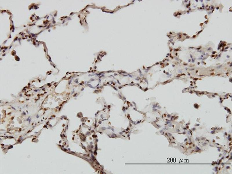 Immunohistochemistry (IHC) image for anti-Echinoderm Microtubule Associated Protein Like 2 (EML2) (AA 1-428) antibody (ABIN2838582)