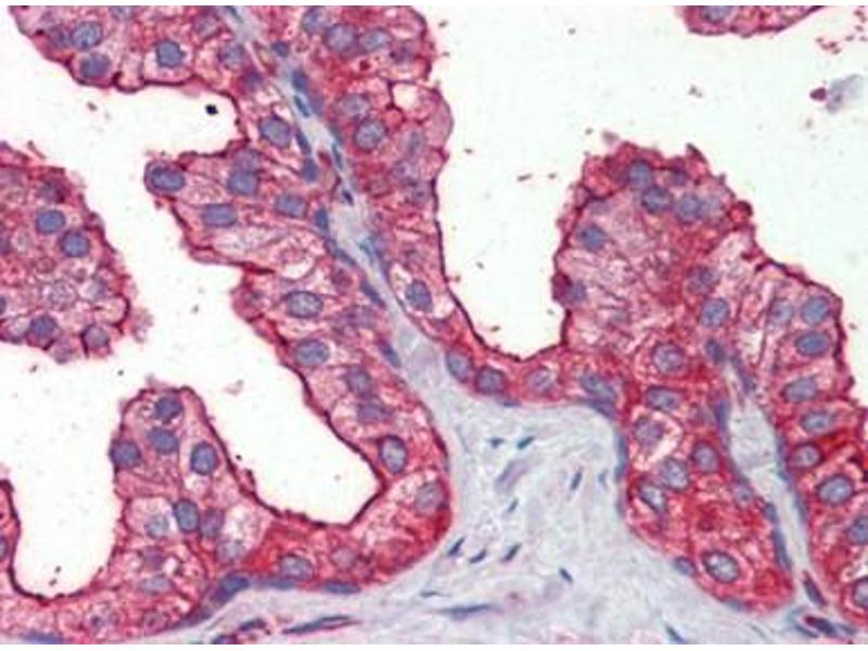 Immunohistochemistry (Paraffin-embedded Sections) (IHC (p)) image for anti-Mitogen-Activated Protein Kinase Kinase Kinase 7 (MAP3K7) (AA 563-579) antibody (ABIN615309)