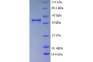 Image no. 1 for PCNA Clamp Associated Factor (PAF) (AA 1-111), (full length) protein (GST tag) (ABIN5709801)