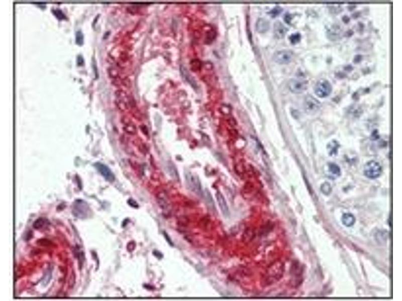 Immunohistochemistry (IHC) image for anti-LPP antibody (ABIN1108058)