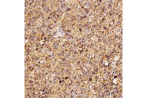 Immunohistochemistry (Paraffin-embedded Sections) (IHC (p)) image for anti-Tumor Necrosis Factor (Ligand) Superfamily, Member 11 (TNFSF11) (AA 1-317) antibody (ABIN252684)