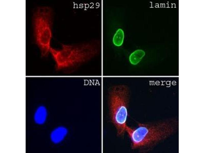 Image: Immunofluorescence of human dermal fibroblasts stained with Lamin A/C (clone jol3)