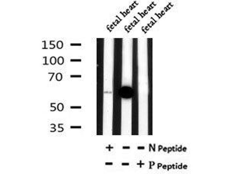 Image no. 2 for anti-Solute Carrier Family 22 (Organic Anion Transporter), Member 8 (SLC22A8) (pSer4) antibody (ABIN6269515)