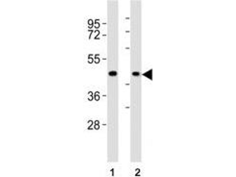 Image no. 1 for anti-Chemokine (C-C Motif) Receptor 1 (CCR1) (AA 13-44) antibody (ABIN3028520)