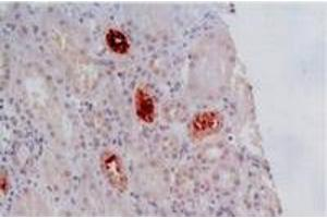 Immunohistochemistry (IHC) image for anti-HLA Class I Histocompatibility Antigen, alpha Chain G (HLAG) antibody (ABIN238485)