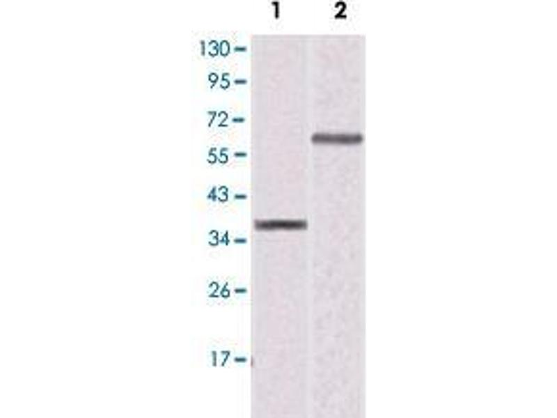 Western Blotting (WB) image for anti-Peroxisome Proliferator-Activated Receptor gamma (PPARG) antibody (ABIN5586011)