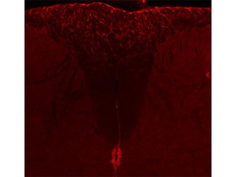 Immunohistochemistry (IHC) image for anti-Vimentin antibody (VIM) (ABIN1742360)