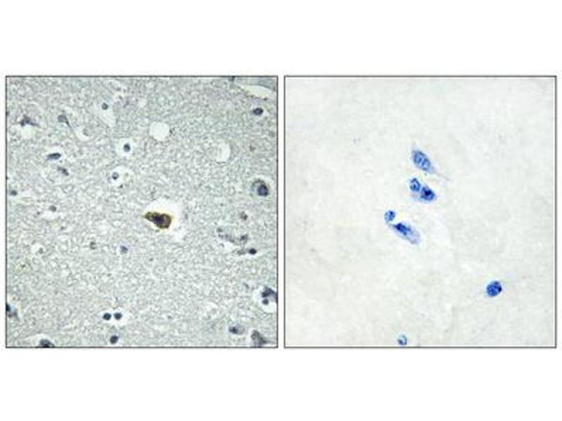 Immunohistochemistry (IHC) image for anti-Brain-Specific Angiogenesis Inhibitor 1 (BAI1) (Internal Region) antibody (ABIN1852924)