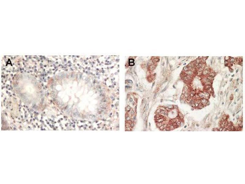 Immunohistochemistry (Paraffin-embedded Sections) (IHC (p)) image for anti-AKT antibody (V-Akt Murine Thymoma Viral Oncogene Homolog 1) (AA 460-480) (ABIN117897)