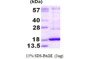 Image no. 1 for Dual Specificity Phosphatase 19 (DUSP19) (AA 65-217) protein (His tag) (ABIN667987)