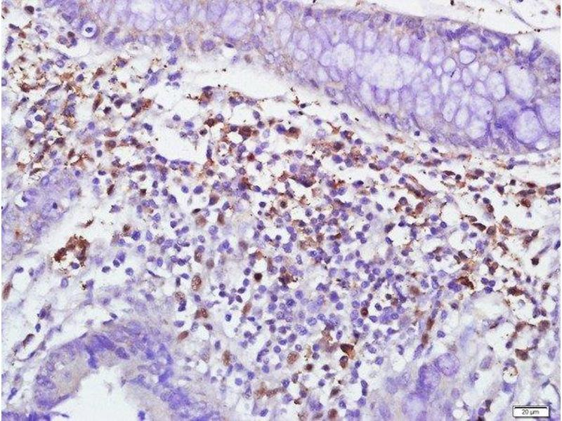 Immunohistochemistry (Paraffin-embedded Sections) (IHC (p)) image for anti-Membrane Metallo-Endopeptidase (MME) (AA 500-550) antibody (ABIN669666)