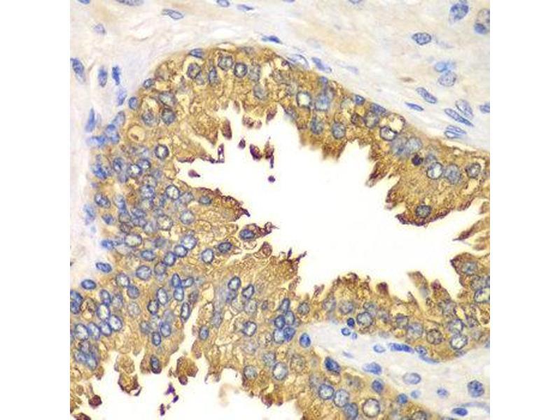 Immunohistochemistry (IHC) image for anti-DEAD (Asp-Glu-Ala-Asp) Box Polypeptide 58 (DDX58) antibody (ABIN1872240)