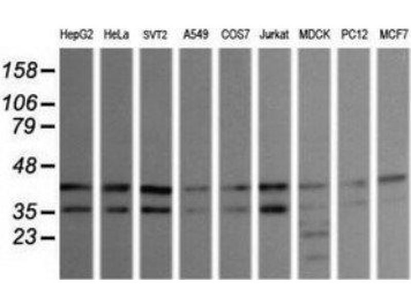 Western Blotting (WB) image for anti-Mitogen-Activated Protein Kinase 9 (MAPK9) antibody (ABIN4327971)