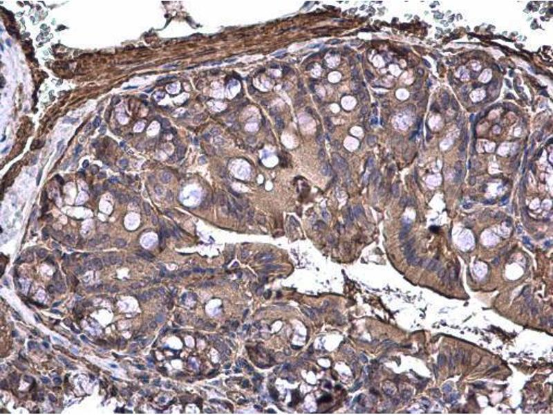 Immunohistochemistry (IHC) image for anti-MAP3K8 antibody (Mitogen-Activated Protein Kinase Kinase Kinase 8) (Center) (ABIN2855464)
