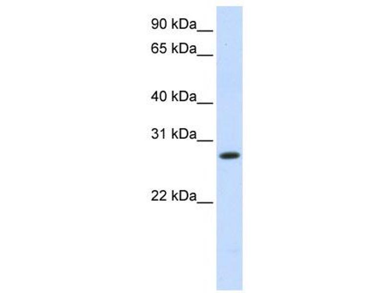11 hydroxysteroid dehydrogenase type 2