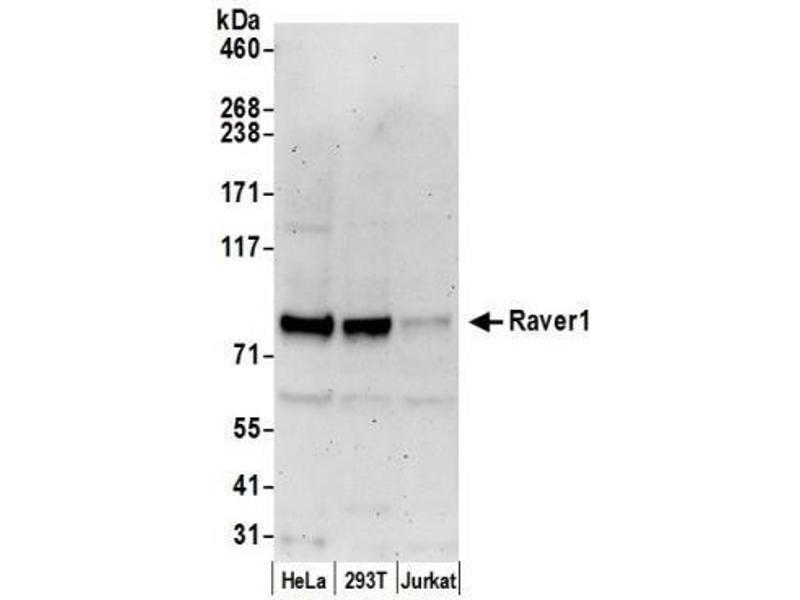 Western Blotting (WB) image for anti-Ribonucleoprotein, PTB-Binding 1 (RAVER1) (AA 556-606) antibody (ABIN4349463)