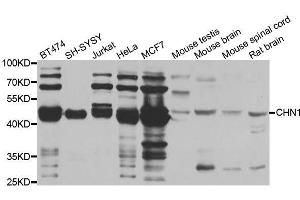 Image no. 2 for anti-rho GTPase Activating Protein 2 (ARHGAP2) antibody (ABIN6138552)