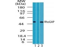 Image no. 1 for anti-rho GTPase Activating Protein 1 (ARHGAP1) (AA 1-50) antibody (ABIN207682)