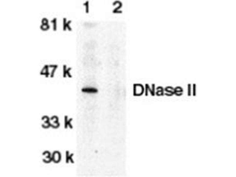 image for anti-Deoxyribonuclease II, Lysosomal (DNASE2) (C-Term) antibody (ABIN318974)