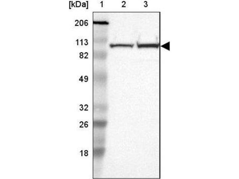 Western Blotting (WB) image for anti-Actinin, alpha 4 (ACTN4) antibody (ABIN4279711)