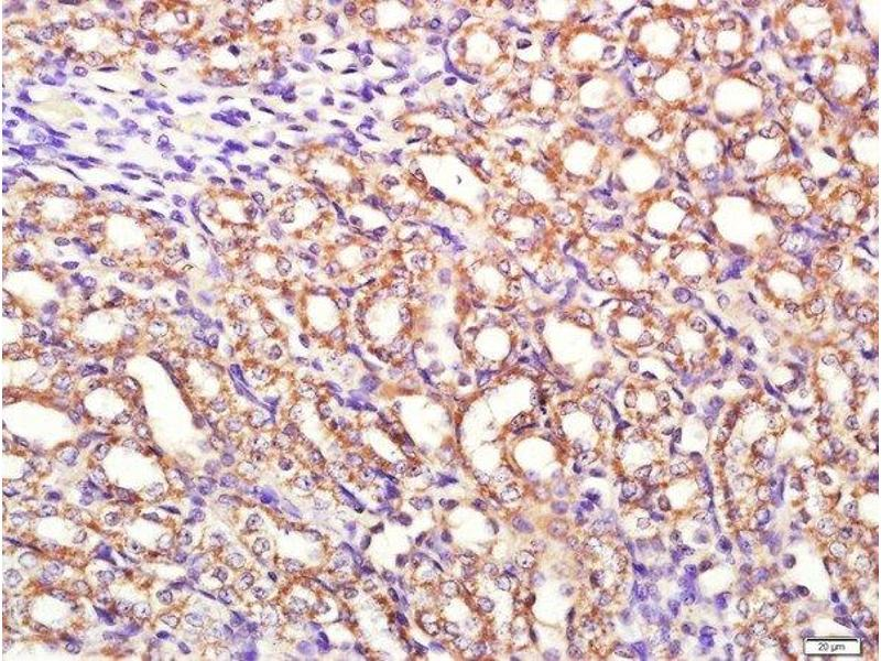 Immunohistochemistry (Paraffin-embedded Sections) (IHC (p)) image for anti-Phosphoinositide-3-Kinase, Catalytic, alpha Polypeptide (PIK3CA) (AA 1010-1050) antibody (ABIN677198)