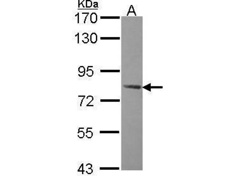Western Blotting (WB) image for anti-Protein Kinase, AMP-Activated, gamma 2 Non-Catalytic Subunit (PRKAG2) (C-Term) antibody (ABIN2856952)