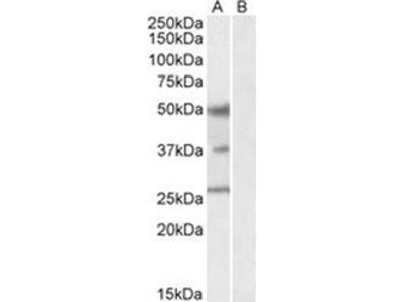 image for anti-FOXA1 antibody (Forkhead Box A1) (C-Term) (ABIN782926)