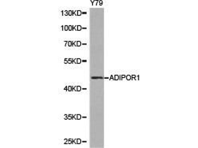 Western Blotting (WB) image for anti-Adiponectin Receptor 1 (ADIPOR1) antibody (ABIN1870826)