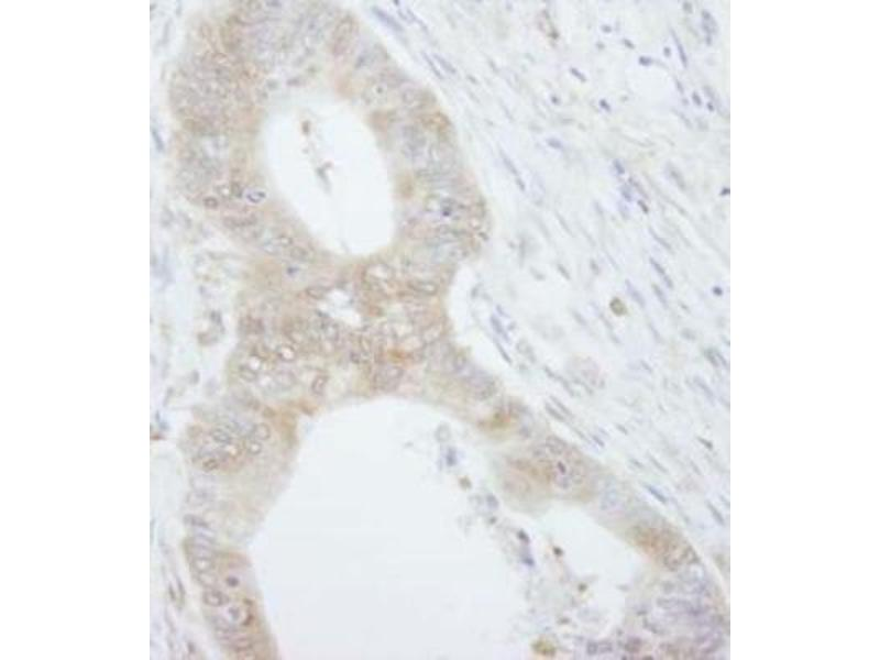 Immunohistochemistry (Paraffin-embedded Sections) (IHC (p)) image for anti-EIF4EBP1 antibody (Eukaryotic Translation Initiation Factor 4E Binding Protein 1) (C-Term) (ABIN152297)