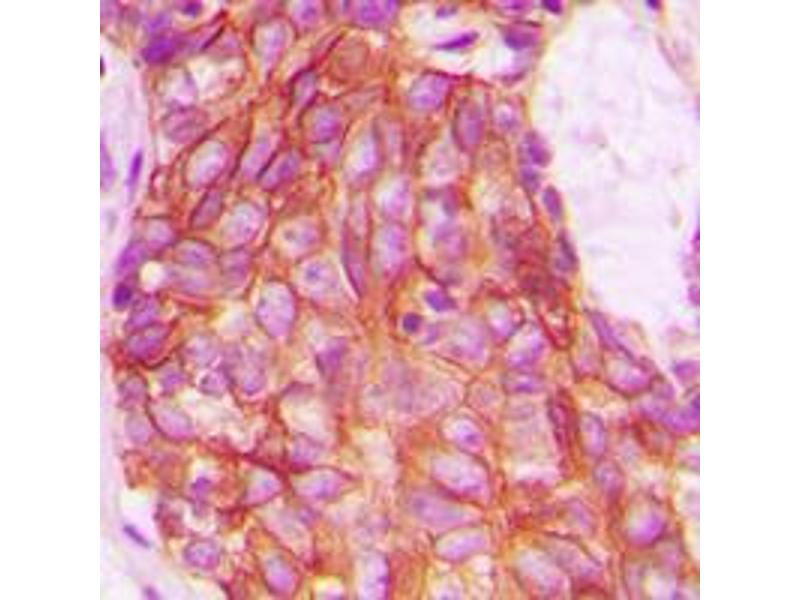 Immunohistochemistry (IHC) image for anti-CXCR7 anticorps (Chemokine (C-X-C Motif) Receptor 7) (C-Term) (ABIN2704850)