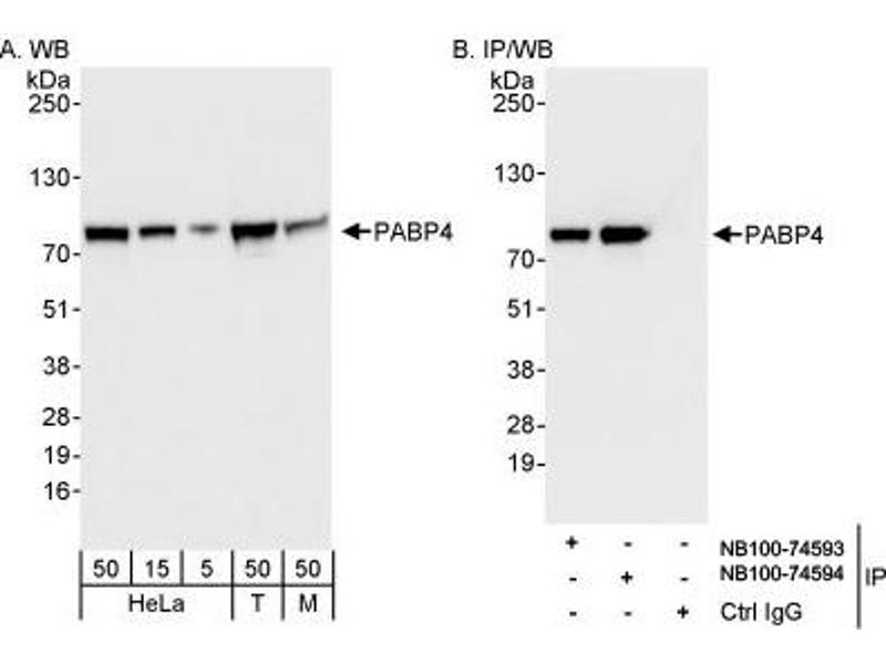 Image no. 1 for anti-Poly(A) Binding Protein, Cytoplasmic 4 (Inducible Form) (PABPC4) (AA 594-644) antibody (ABIN261671)