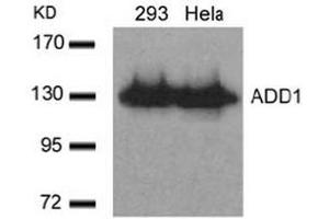 Image no. 3 for anti-Adducin 1 (Alpha) (ADD1) (Ser726) antibody (ABIN197406)