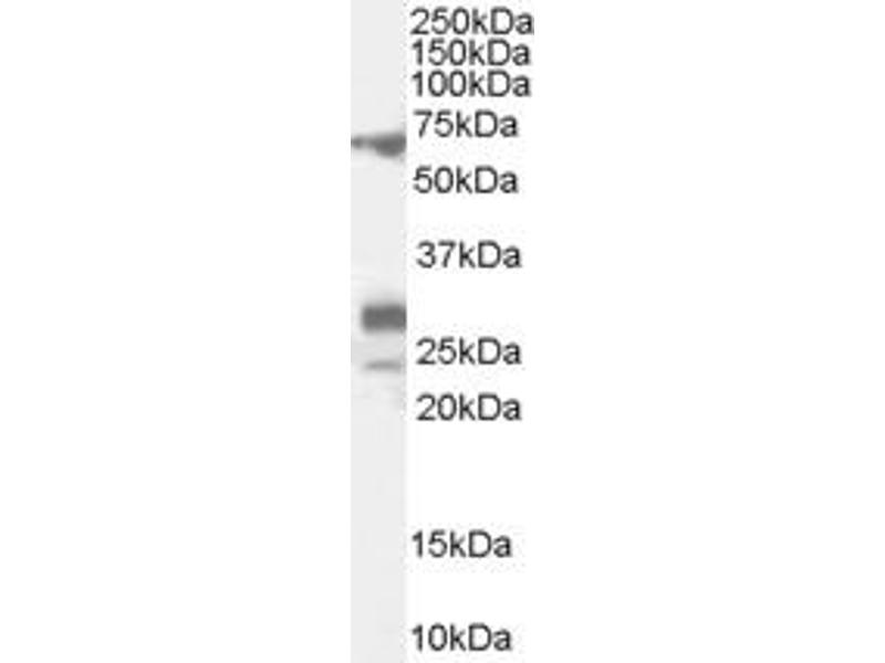 Western Blotting (WB) image for anti-Sal-Like 4 (Drosophila) (SALL4) (Isoform A) antibody (ABIN253101)
