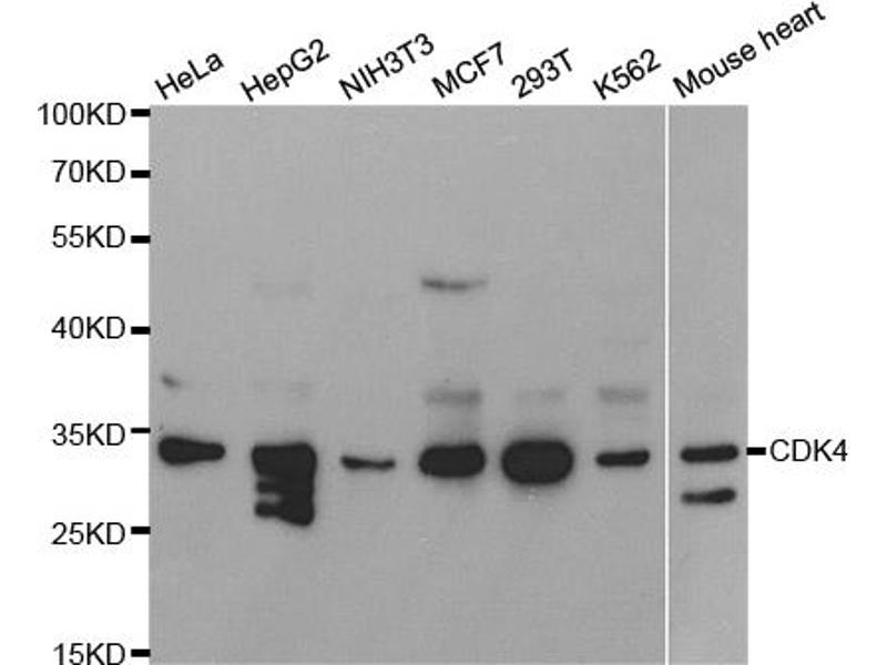 Image no. 1 for anti-Cyclin-Dependent Kinase 4 (CDK4) antibody (ABIN6566583)