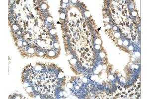 Immunohistochemistry (IHC) image for anti-Complement Component 8, beta Polypeptide (C8B) (Middle Region) antibody (ABIN2781763)