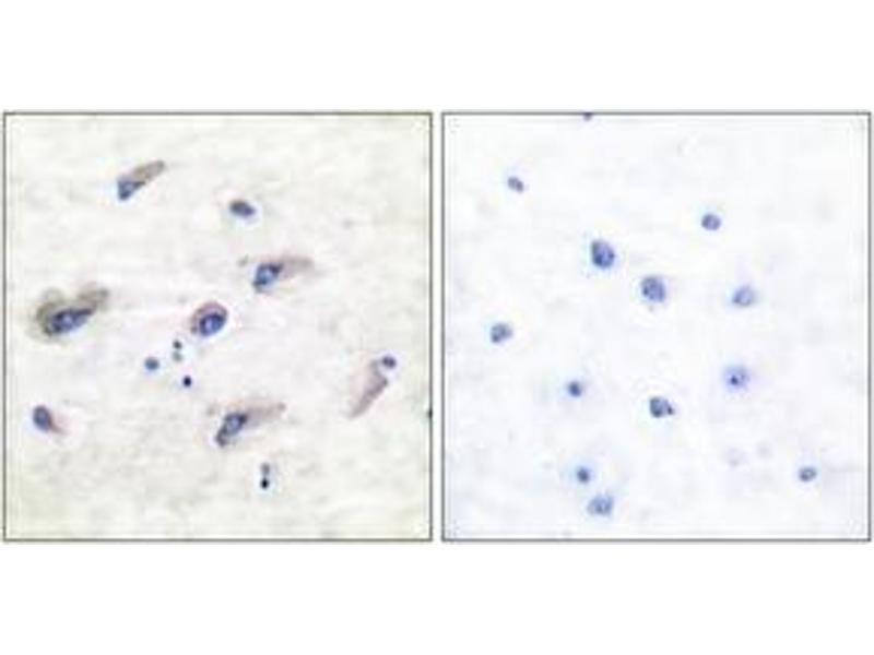 Immunohistochemistry (IHC) image for anti-MAPT antibody (Microtubule-Associated Protein tau) (pSer356) (ABIN1531989)